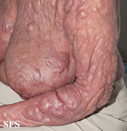 mycosis fungoides