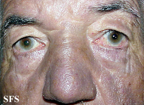 hyperpigmentation due to amiodarone(hyperpigmentation_due_to_amiodarone5.jpg)
