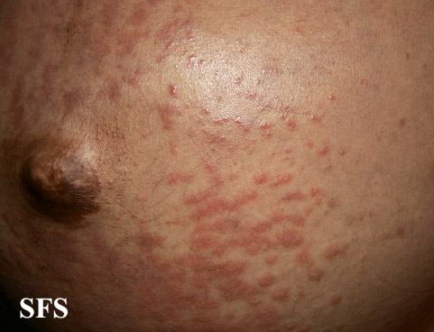 pruritic urticarial papules and plaques of pregnancy(pruritic_urticarial_papules_and_plaques_of_pregnancy7.jpg)