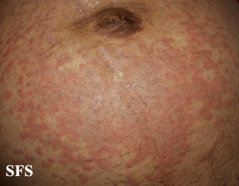 pruritic urticarial papules and plaques of pregnancy(pruritic_urticarial_papules_and_plaques_of_pregnancy8.jpg)