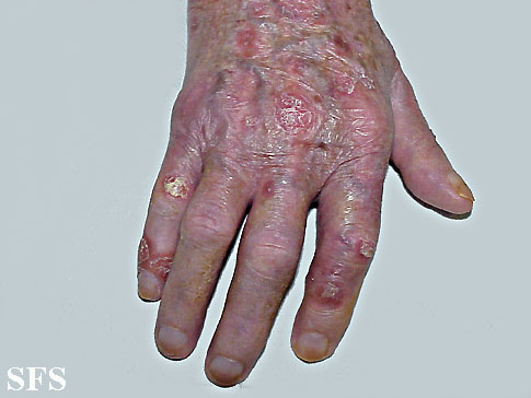 reiter's syndrome(reiter's_syndrome5.jpg)