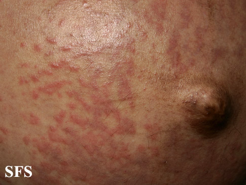 pruritic urticarial papules and plaques of pregnancy(pruritic_urticarial_papules_and_plaques_of_pregnancy6.jpg)