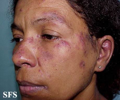 lupus erythematosus-subacute cutaneous lupus erythematosus