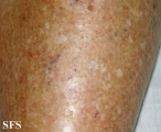 asteatotic dermatitis