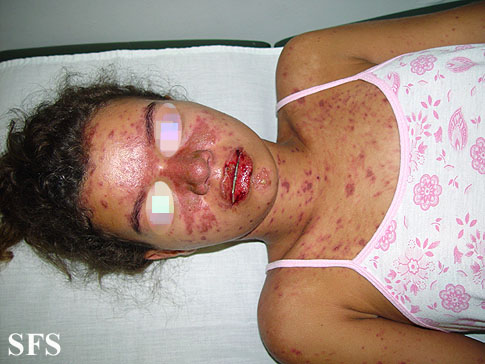 lupus erythematosus-systemic(lupus_erythematosus-systemic1.jpg)