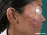acne-topical corticosteroids