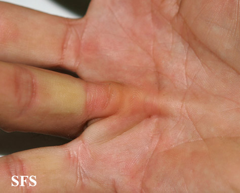 dupuytren contracture