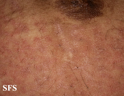 pruritic urticarial papules and plaques of pregnancy(pruritic_urticarial_papules_and_plaques_of_pregnancy9.jpg)