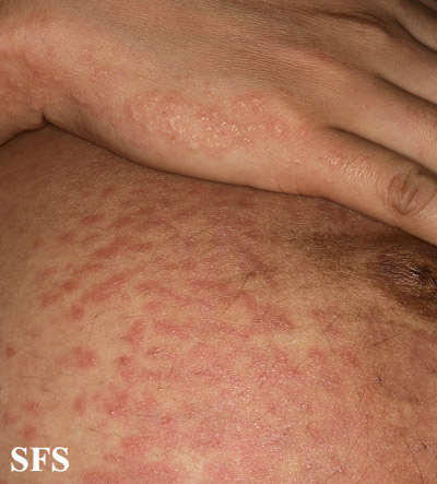 pruritic urticarial papules and plaques of pregnancy(pruritic_urticarial_papules_and_plaques_of_pregnancy11.jpg)