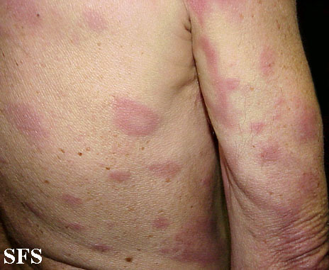 leprosy borderline(leprosy_borderline15.jpg)