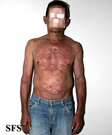 leprosy borderline(leprosy_borderline45.jpg)