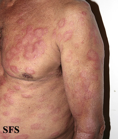 leprosy borderline(leprosy_borderline52.jpg)
