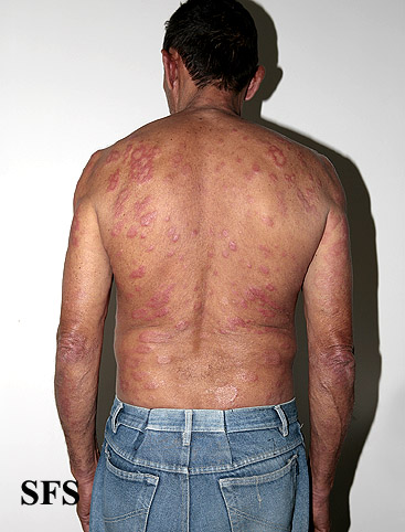 leprosy borderline(leprosy_borderline55.jpg)