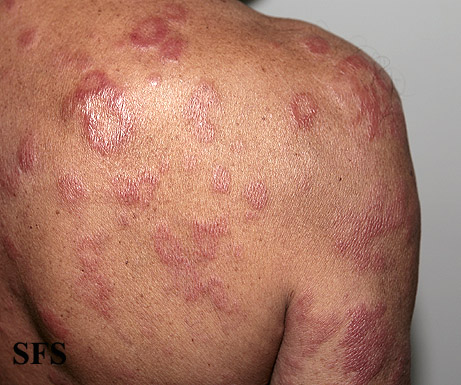 leprosy borderline(leprosy_borderline57.jpg)