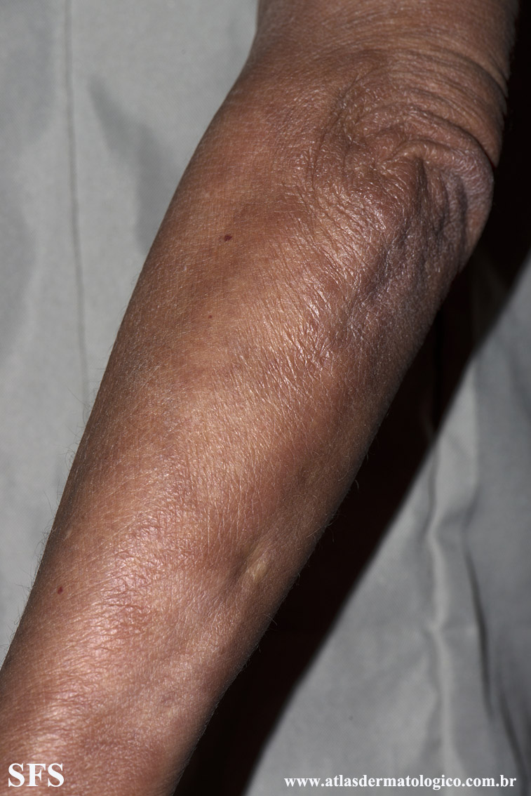leprosy borderline(leprosy_borderline73.jpg)
