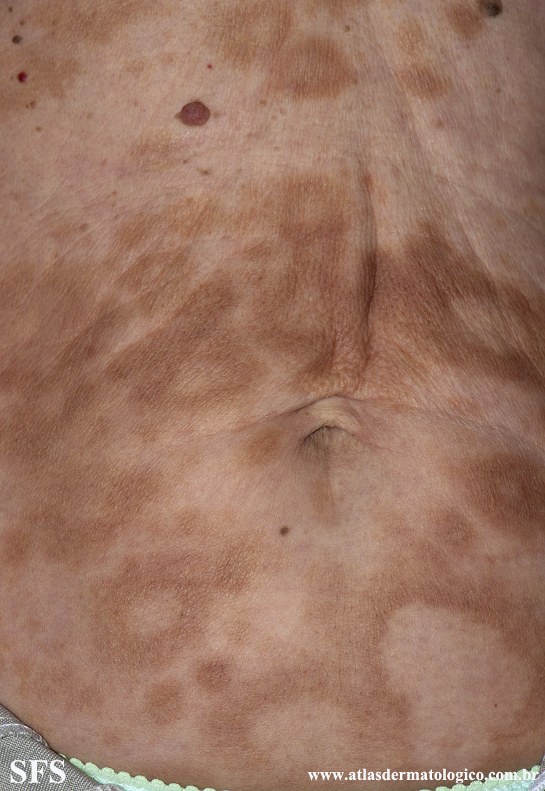 leprosy borderline(leprosy_borderline67.jpg)