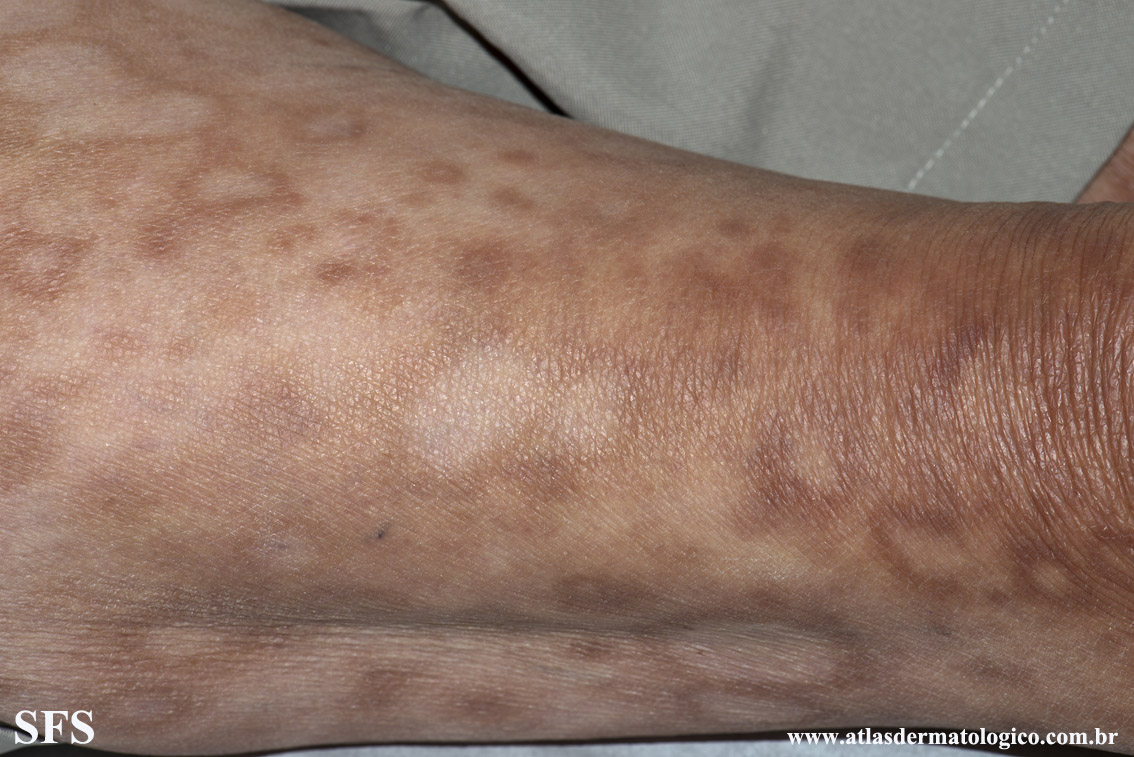 leprosy borderline(leprosy_borderline78.jpg)