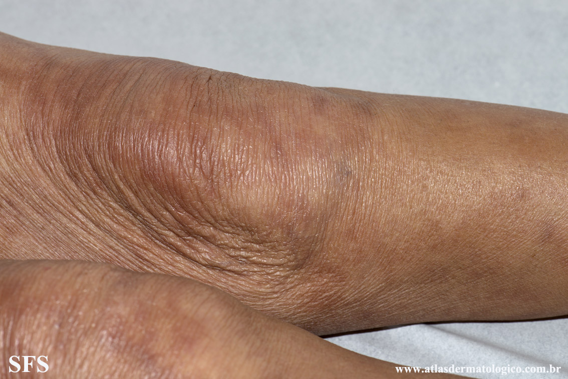leprosy borderline(leprosy_borderline83.jpg)