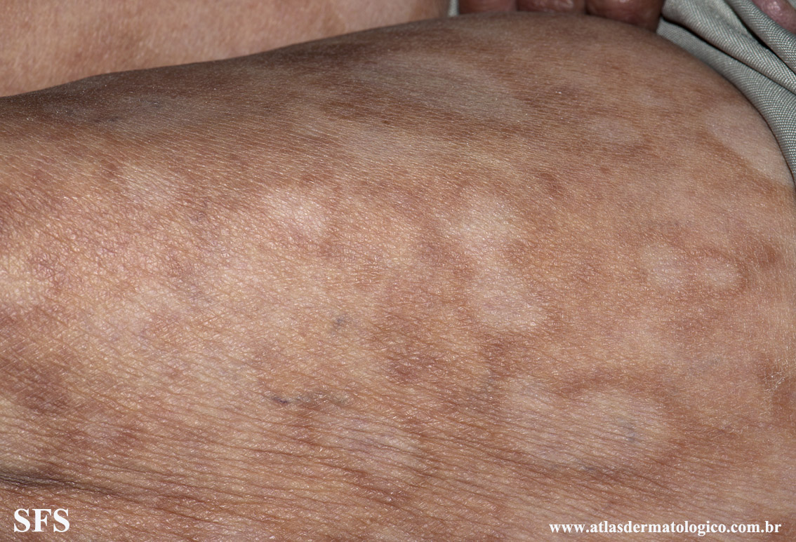 leprosy borderline(leprosy_borderline89.jpg)