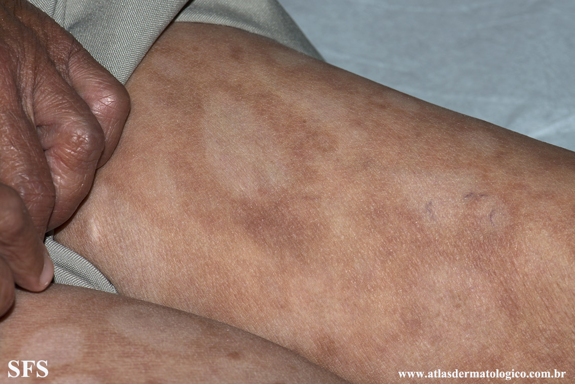 leprosy borderline(leprosy_borderline85.jpg)