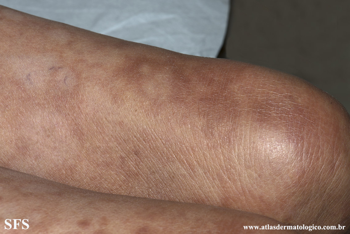 leprosy borderline(leprosy_borderline86.jpg)