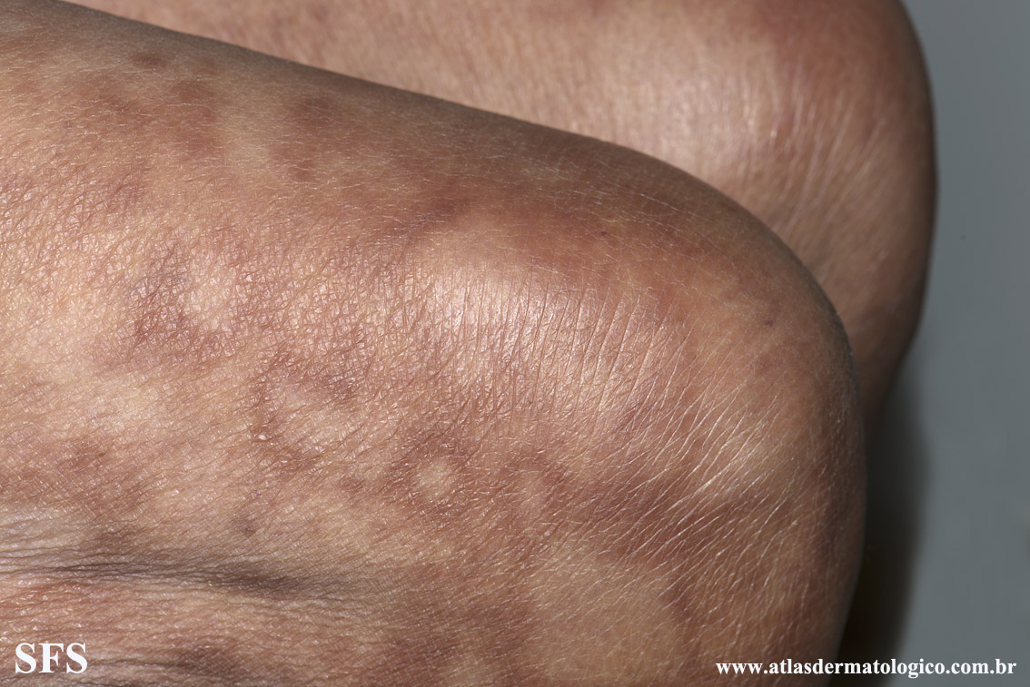 leprosy borderline(leprosy_borderline87.jpg)
