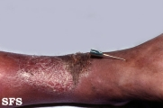 stasis eczema and leprosy tuberculoid