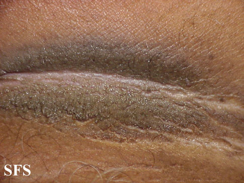 pseudo-acanthosis nigricans(pseudo-acanthosis_nigricans5.jpg)