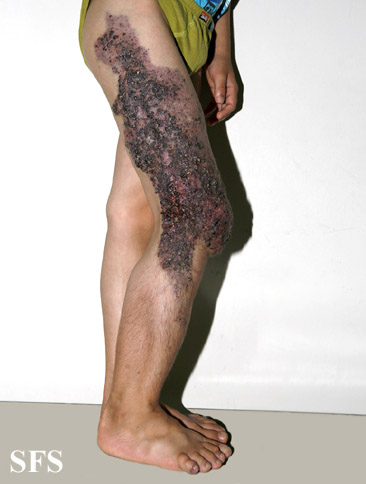klippel trenaunay syndrome