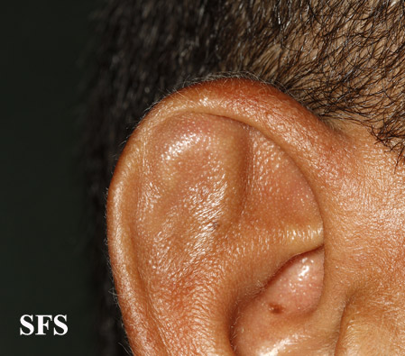 pseudocyst of the ear(pseudocyst_of_the_ear8.jpg)