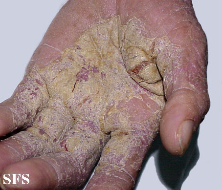 norwegian scabies