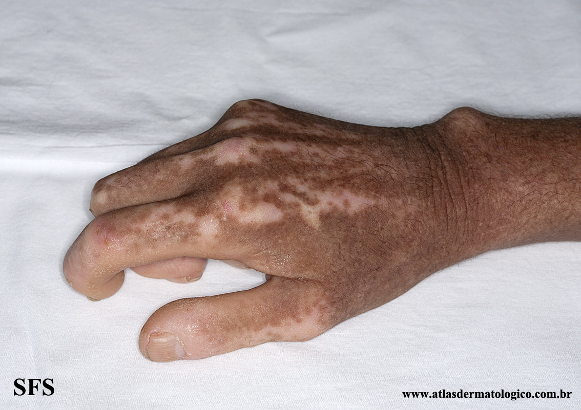 systemic_sclerosis(systemic_sclerosis6.jpg)