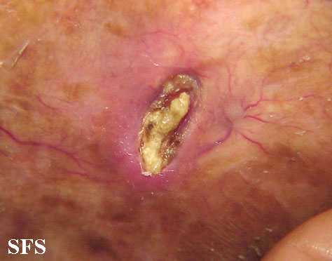 secondary cutaneous ossification