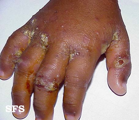 scabies-secondary infection(scabies-secondary_infection1.jpg)