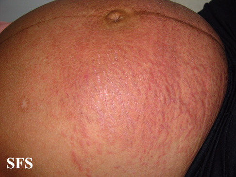 pruritic urticarial papules and plaques of pregnancy(pruritic_urticarial_papules_and_plaques_of_pregnancy3.jpg)