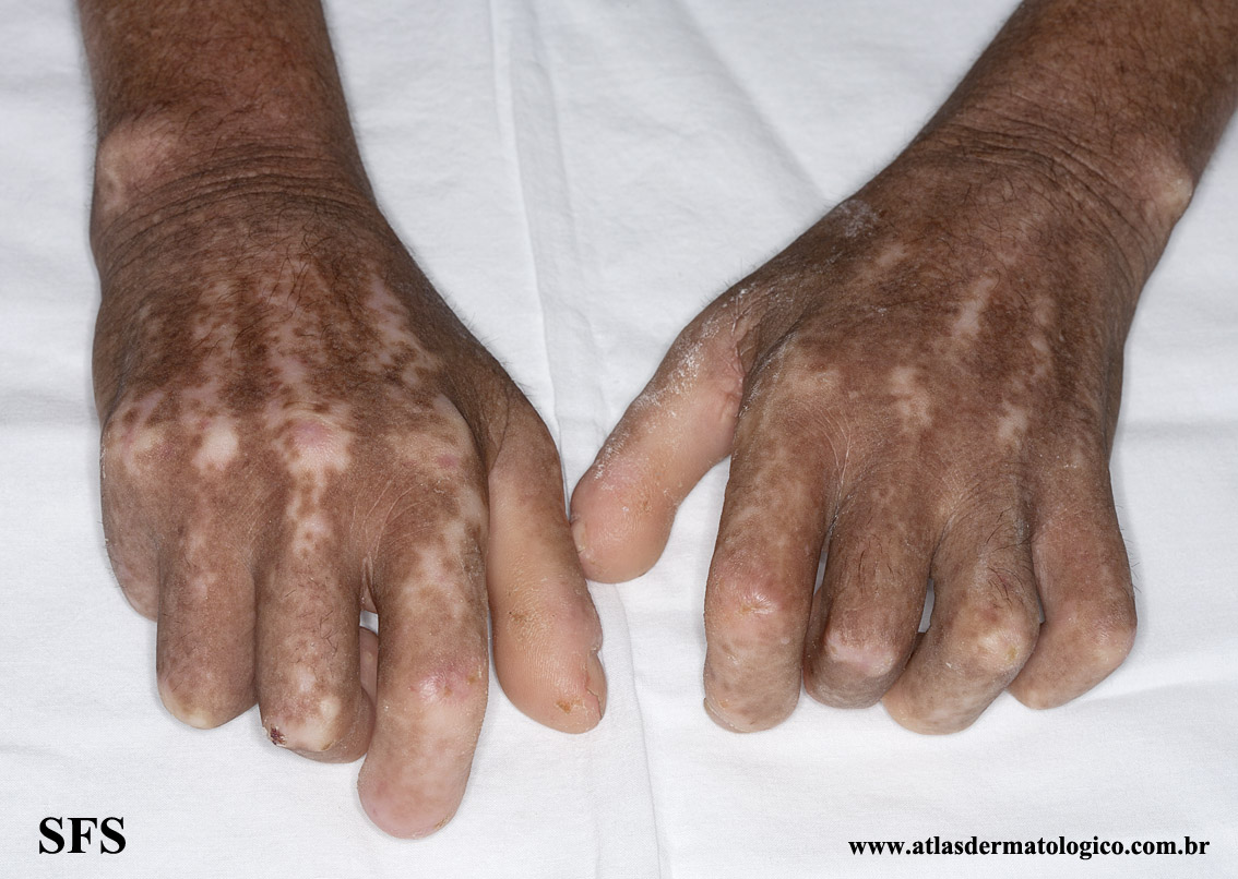 systemic_sclerosis(systemic_sclerosis4.jpg)