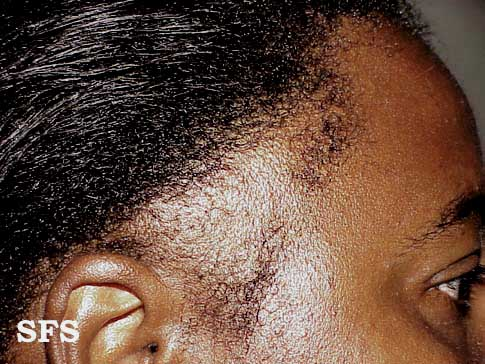 traction-traumatic alopecia(traction-traumatic_alopecia1.jpg)
