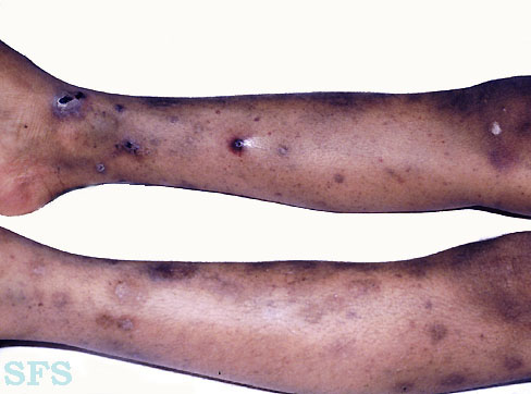 thrombocytopenic purpura idiopatic
