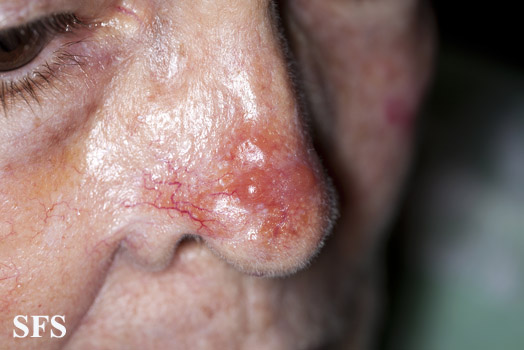 leishmaniasis-cutaneous leishmaniasis