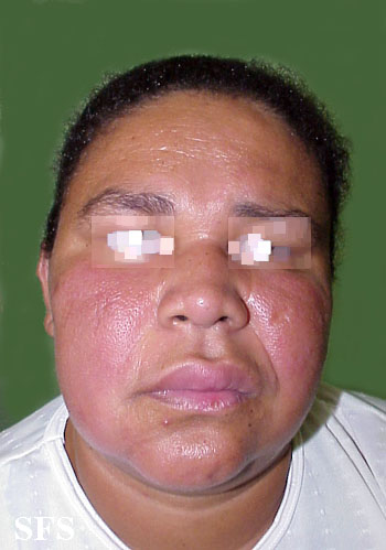 melkersson rosenthal syndrome(melkersson_rosenthal_syndrome1.jpg)