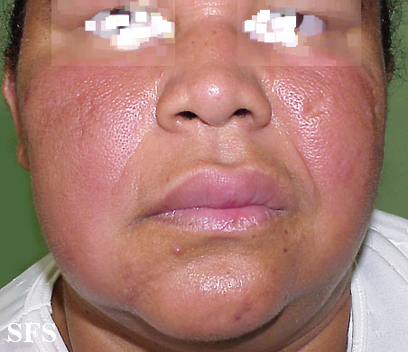melkersson rosenthal syndrome(melkersson_rosenthal_syndrome2.jpg)