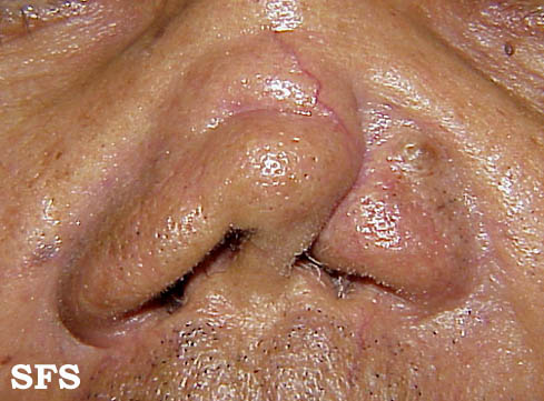 leishmaniasis-mucocutaneous leishmaniasis