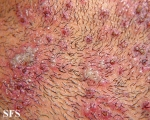 herpetic sycosis