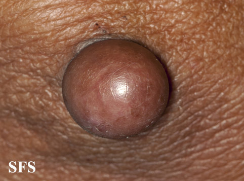 proliferating trichilemmal cyst