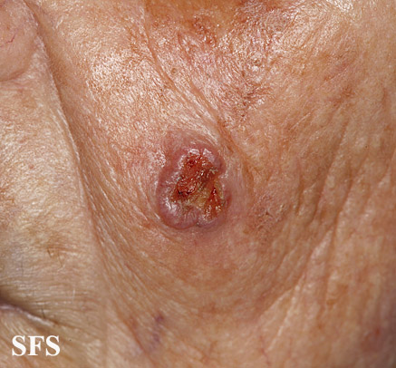 squamous cell carcinoma
