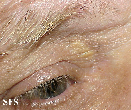 xanthelasma palpebrarum(xanthelasma_palpebrarum6.jpg)