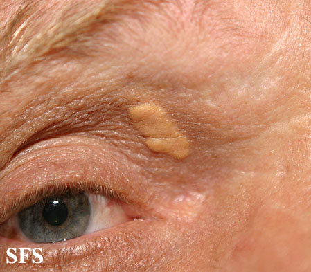 xanthelasma palpebrarum(xanthelasma_palpebrarum10.jpg)