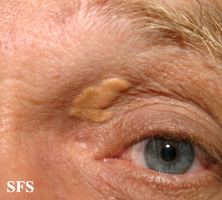 xanthelasma palpebrarum(xanthelasma_palpebrarum11.jpg)