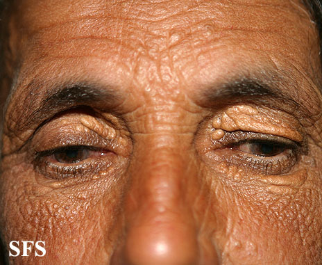 xanthelasma palpebrarum(xanthelasma_palpebrarum12.jpg)