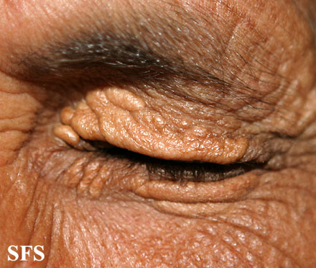 xanthelasma palpebrarum(xanthelasma_palpebrarum13.jpg)